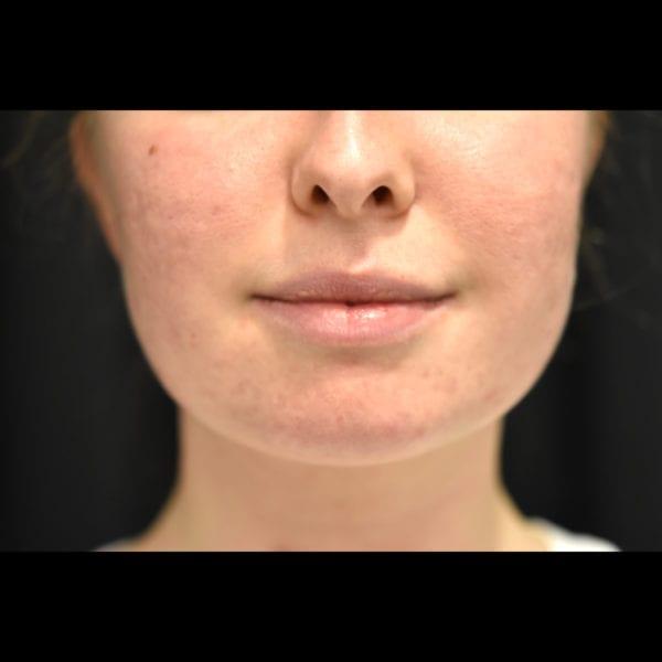 Före laser ansikte