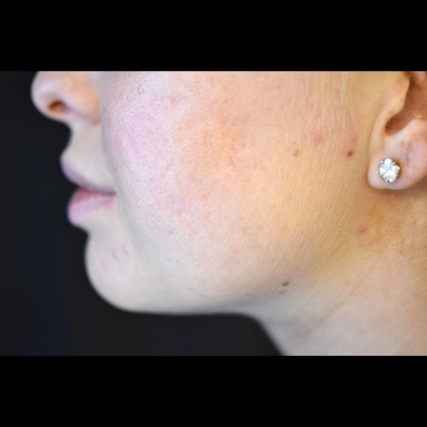 Efter laser ansikte