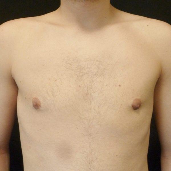 Mansbyst framifrån efter gynekomasti