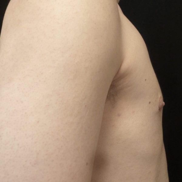 Mansbyst från sidan efter gynekomasti