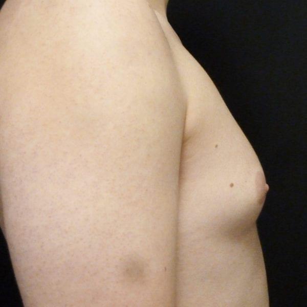 Mansbyst från sidan innan gynekomasti