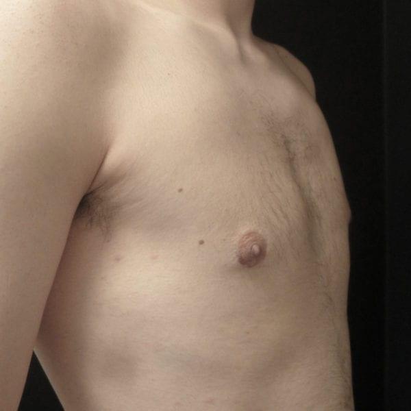 Mansbröst snett framifrån efter gynekomasti