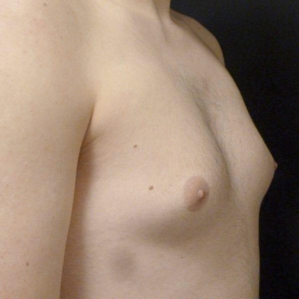 Mansbröst snett från sidan innan gynekomasti
