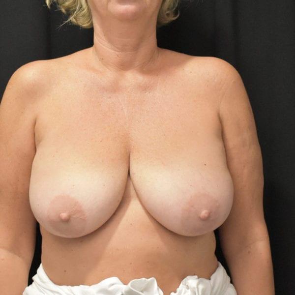 Byst framifrån innan bröstförminskning 179114