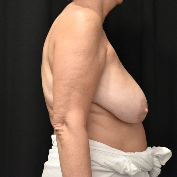 Byst från sidan innan bröstförminskning 179114