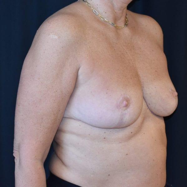 Byst snett från sidan efter bröstförminskning 179114