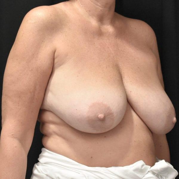 Byst snett från sidan innan bröstförminskning 179114