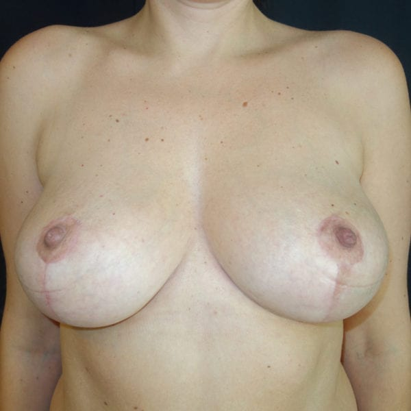 Byst framifrån efter bröstlyft 180957