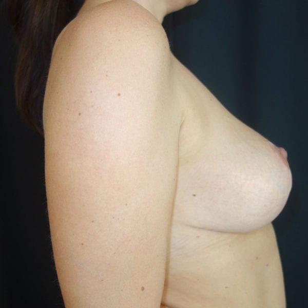 Byst från sidan efter bröstlyft 180957
