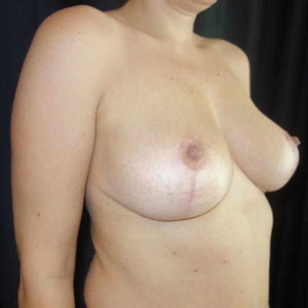 Byst snett framifrån efter bröstlyft 180957