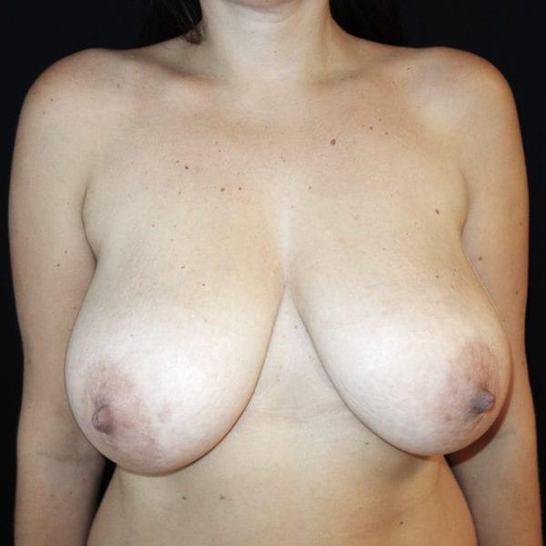 Byst framifrån innan bröstlyft 180957