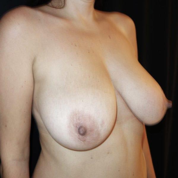 Byst snett framifrån innan bröstlyft 180957