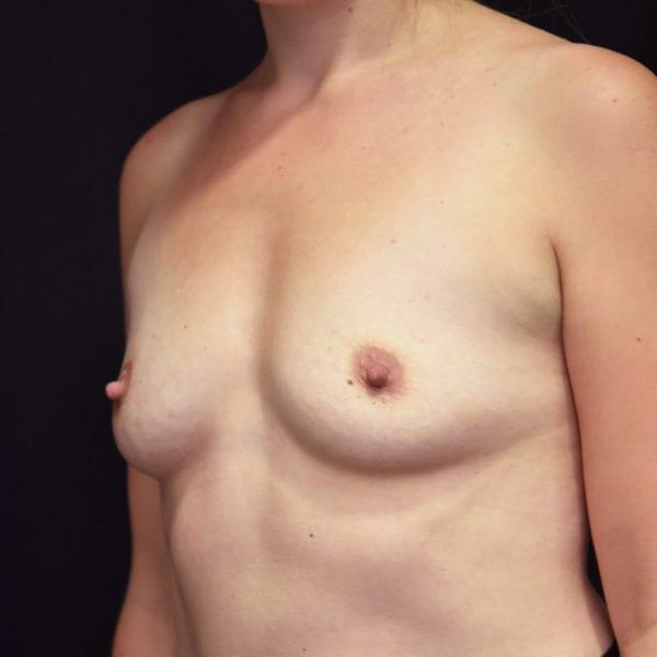 Byst snett från sida innan bröstförstoring 181487