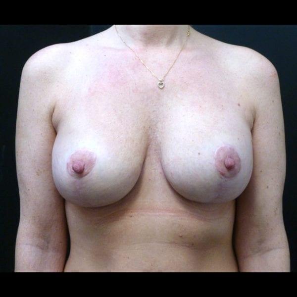 Byst innan bröstförstoring med lyft