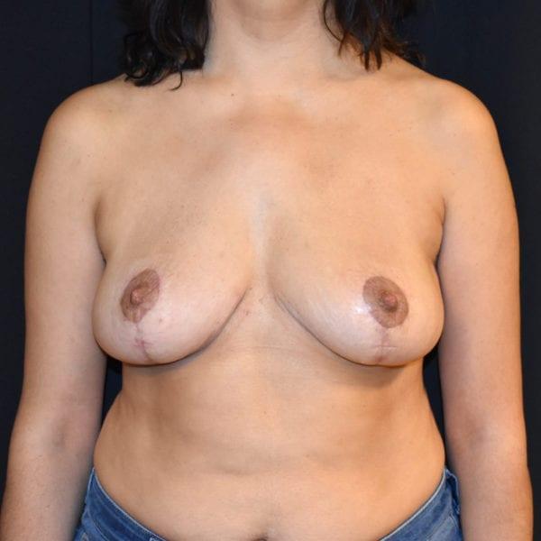 Byst framifrån efter bröstförminskning