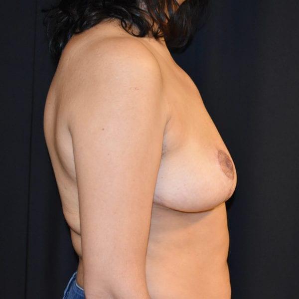 Byst från sidan efter bröstförminskning:182808