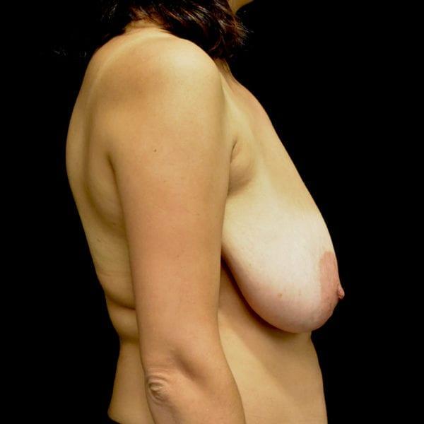 Byst från sidan innan bröstförminskning 182808