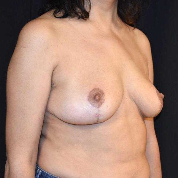 Byst snett från sidan efter bröstförminsking 182808