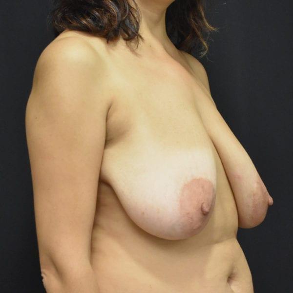 Bysy innan bröstförminskning snett från sidan 182808