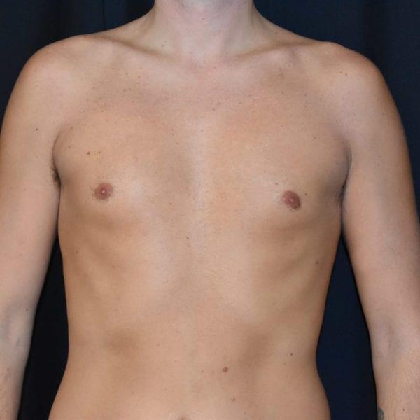Bröst framifrån efter gynekomasti 183650