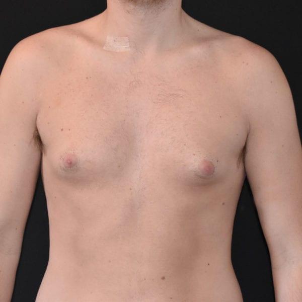 Bröst framifrån innan gynekomasti 183650
