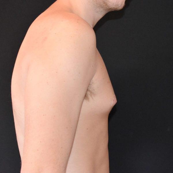Bröst från sidan innan gynekomasti 183650
