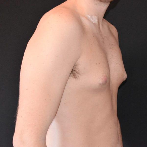 Bröst snett från sidan innan gynekomasti 183650