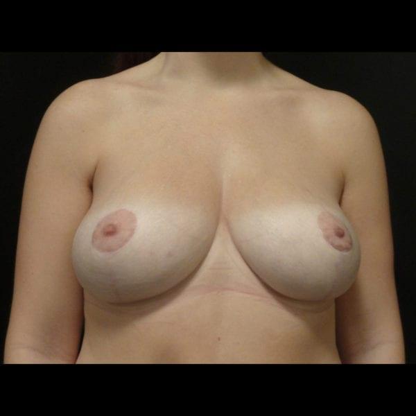 Byst efter bröstlyft