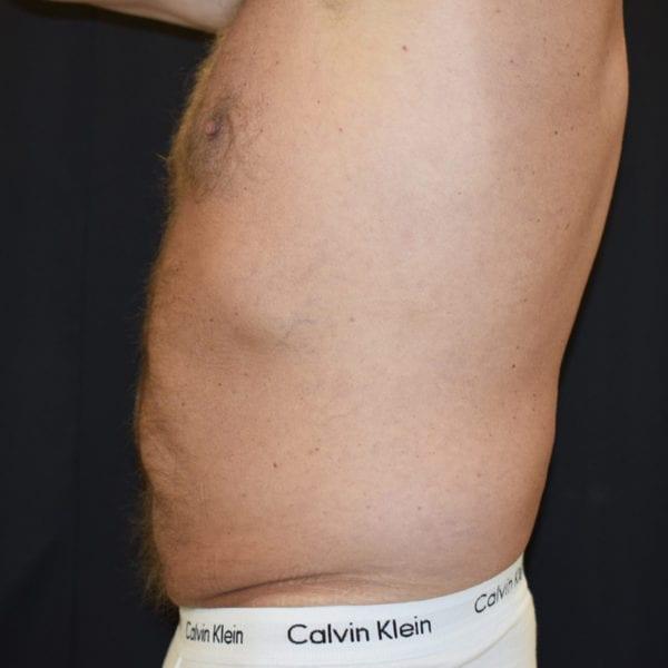 Magparti från sidan efter två behandlingar med CoolSculpting