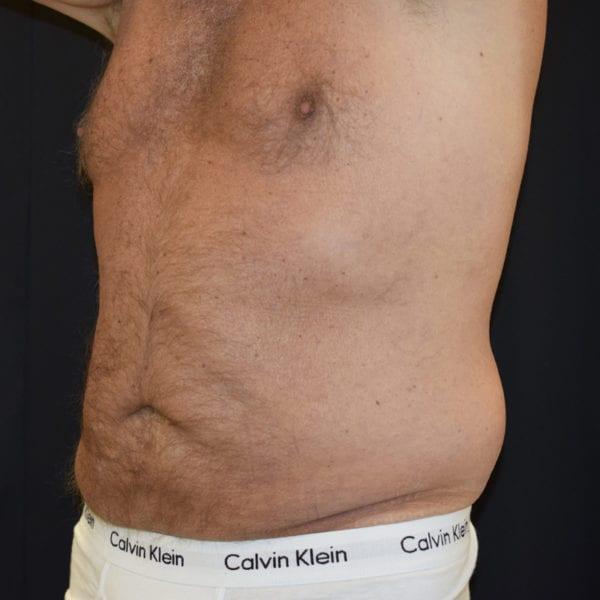 Magparti man från sidan efter två behandlingar Cool Sculptioing