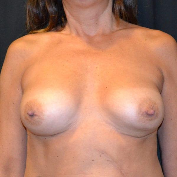Byst framifrån innan uttag implantat och lyft