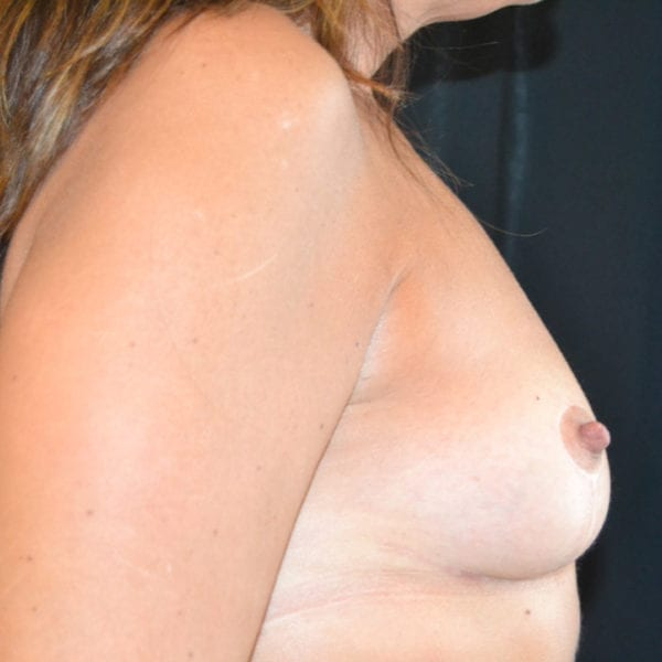 Byst från sidan efter uttag implantat och lyft
