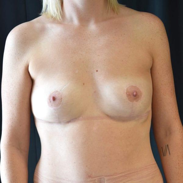 Byst framifrån efter uttag implantat, fettransplantation samt lyft 26166