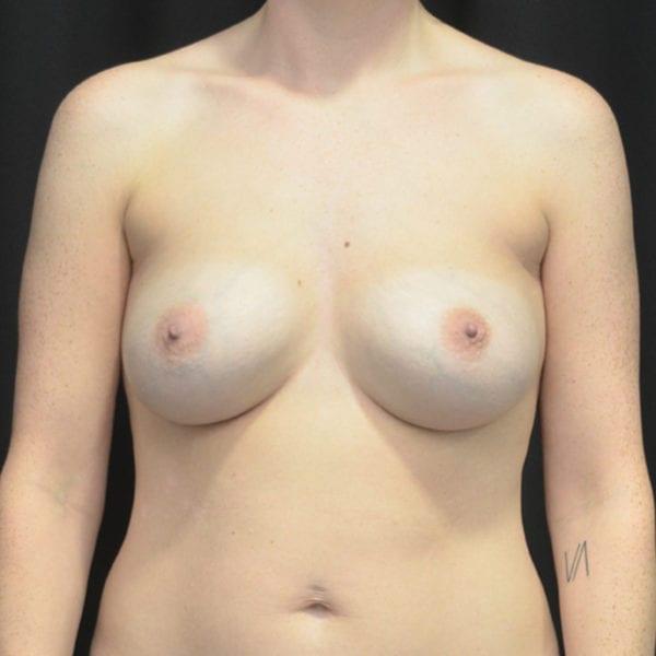 Byst framifrån före uttag implantat, fettransplantation samt lyft 26166