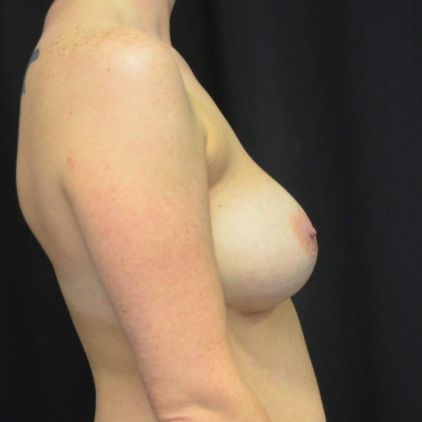 Byst från sidan före uttag implantat, fettransplantation samt lyft 26166