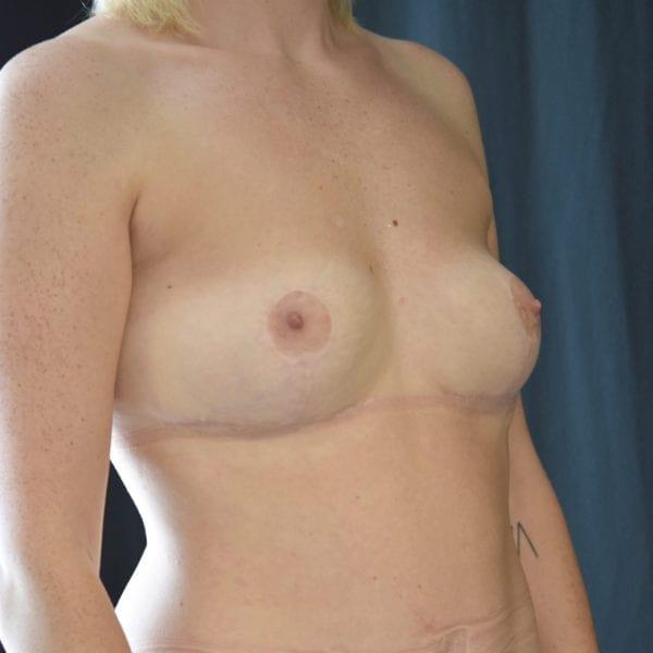 Byst snett från sidan efter uttag implantat, fettransplantation samt lyft 26166