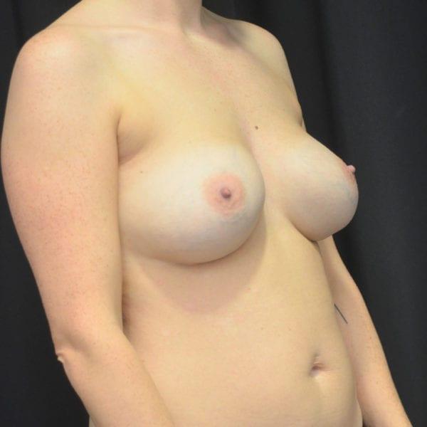 Byst snett från sidan före uttag implantat, fettransplantation samt lyft 26166