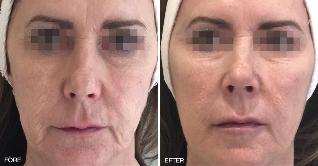 Resultat på hud i ansiktet efter Profhilo behandling