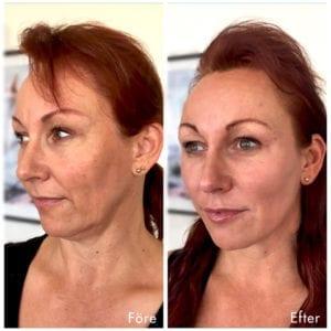 Kvinna före och efter ett trådlyft med V Soft Line