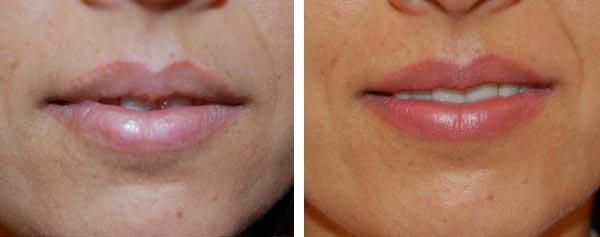 Före och efter kosmetisk lipliner