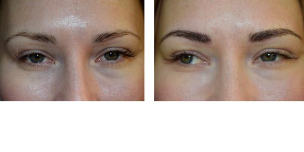 Före och efter microblading Ögonbryn