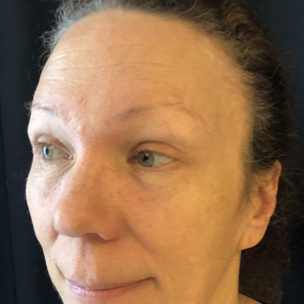 Ansikte snett från sidan efter pannlyft 172480