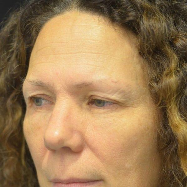 Ansikte snett från sidan innan pannlyft 172480