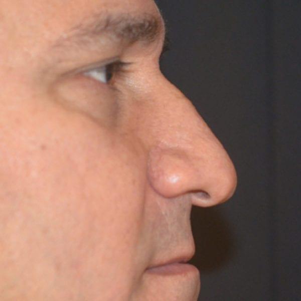 Innan näsplastik framifrån 173682-1