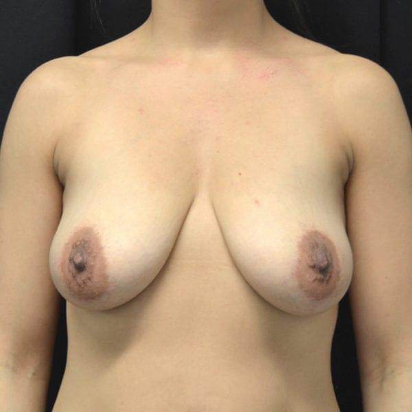 Nyst innan bröstförminsking framifrån 177616