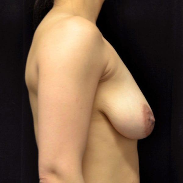 Nyst innan bröstförminsking från sidan 177616