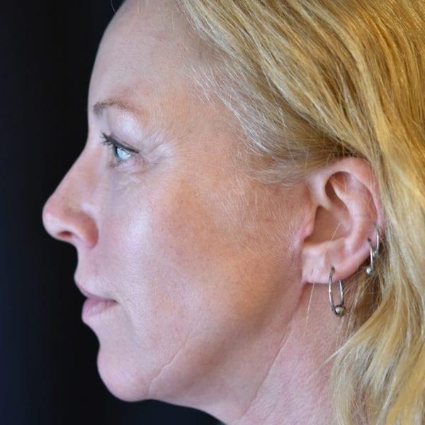 Kvinna från sidan efter facelift 21696