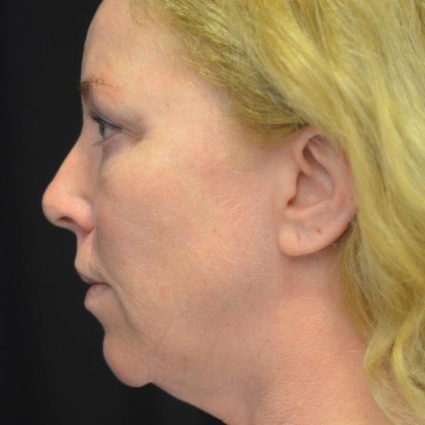 Kvinna från sidan innan facelift 21696