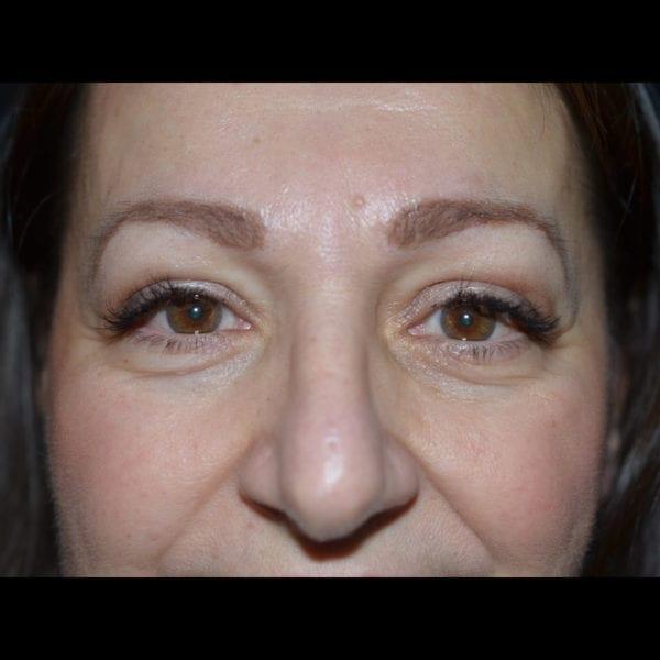 Ögonparti efter övre ögonplastik 2944