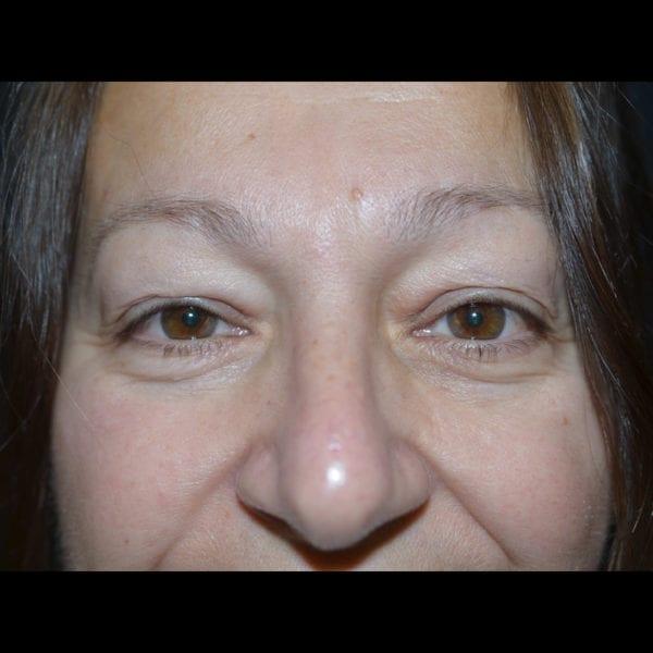 Ögonparti före övre ögonplastik 2944